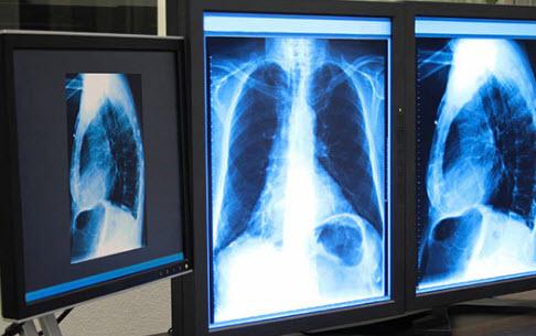 Возможности современной медтехники для людей с проблемами здоровья